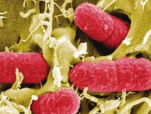 Batterio Killer: i germogli di fagioli potrebbero essere la causa