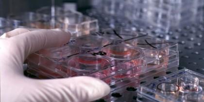 Sclerosi multipla, test con cellule staminali per fermare i sintomi
